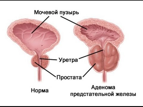 Аденома простаты доброкачественная гиперплазия предстательной железы