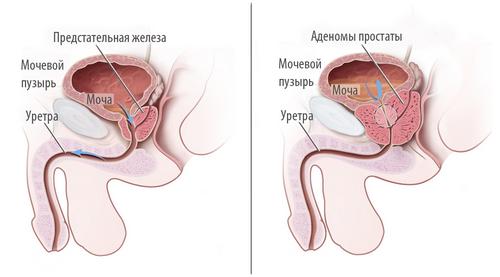 adenoma-predstat-500