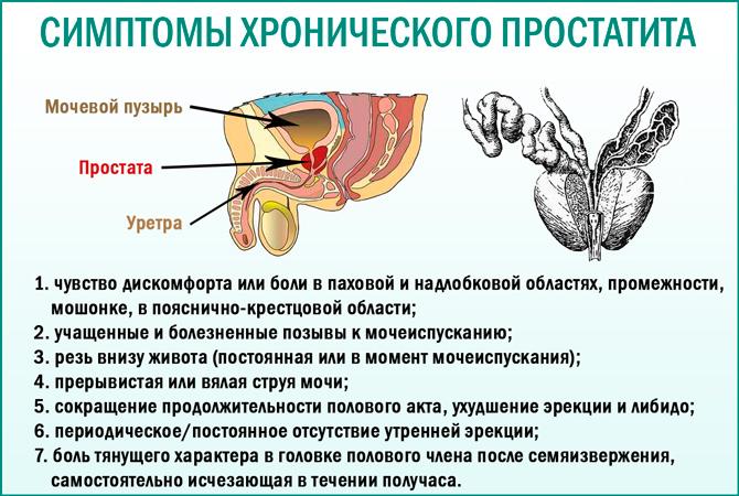 какие могут быть последствия от простатита у мужчин