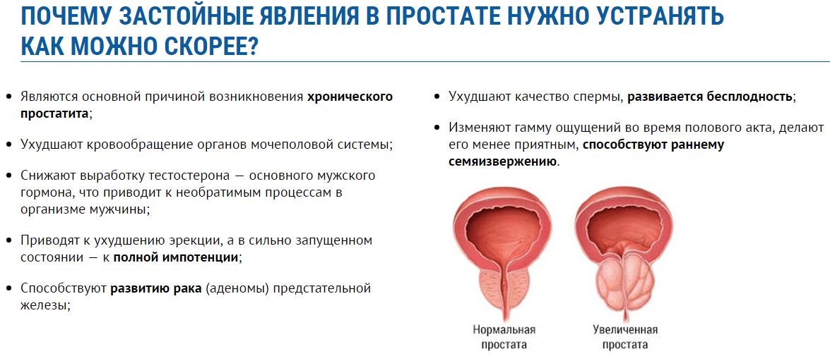 Простатит хронический сперматозоиды препараты для лечение частого мочеиспускания у мужчин при простатите